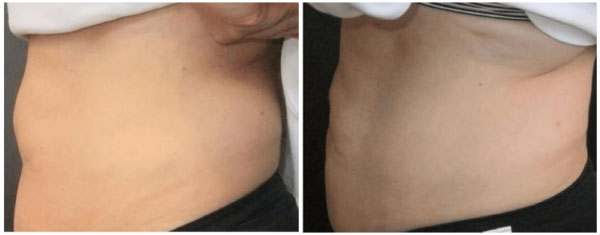 Coolsculpting-Toronto-600x235