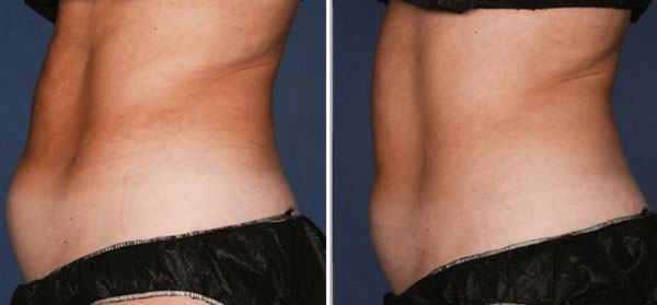 coolsculpting-treatment-toronto-600x279