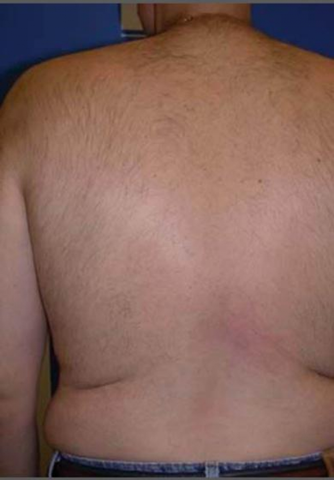 laser-hair-removal-4756-after