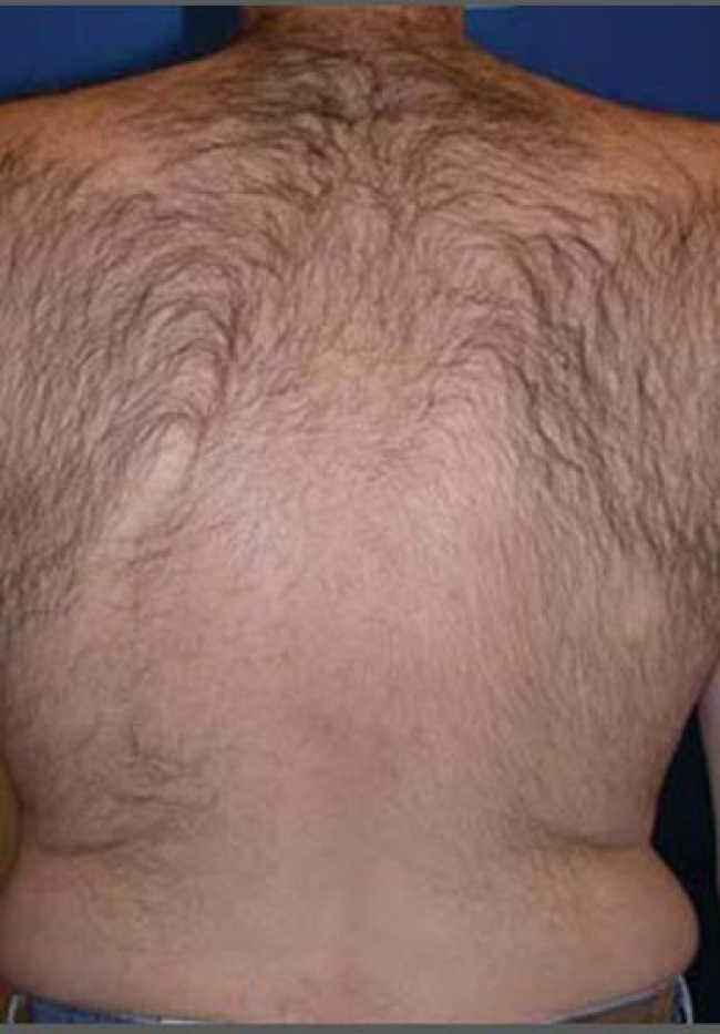 laser-hair-removal-4756-before