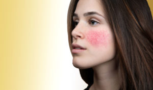 Rosacea Treatments Toronto | Skinatomy Laser Clinic