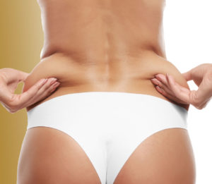 Lipolysis Toronto | Skinatomy Laser Clinic
