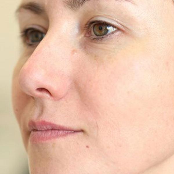Anti-Aging-Facial-after-3