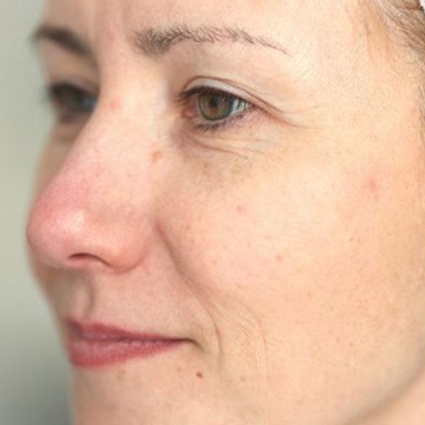 Anti-Aging-Facial-before-3