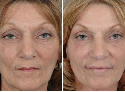 Botox-Treatment-Toronto