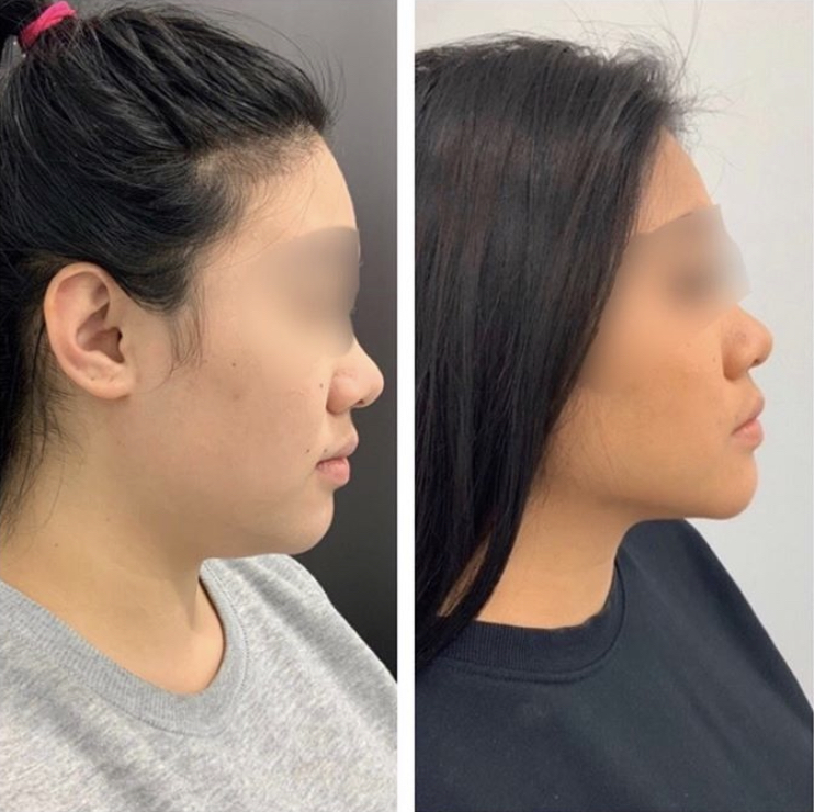 Copy of lipolysis double chin