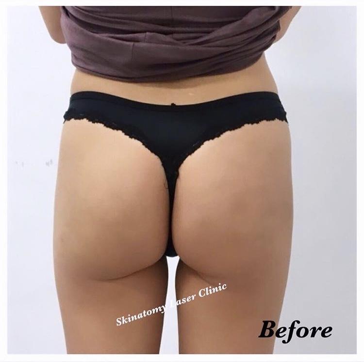 sculptra butt #1 befroe