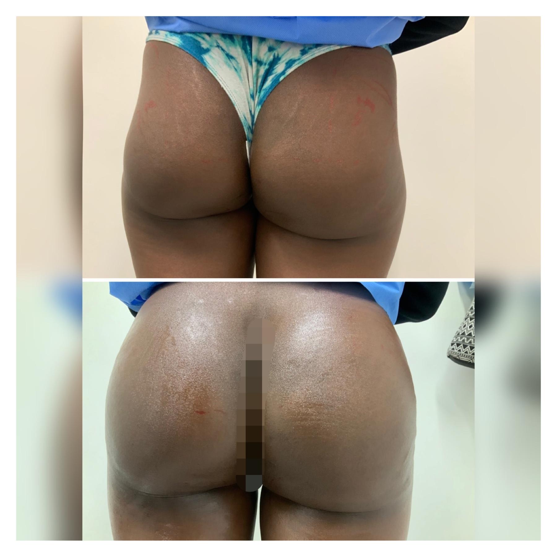 scupltra butt lift
