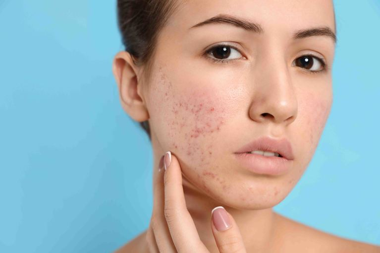 Acne Treatment Toronto
