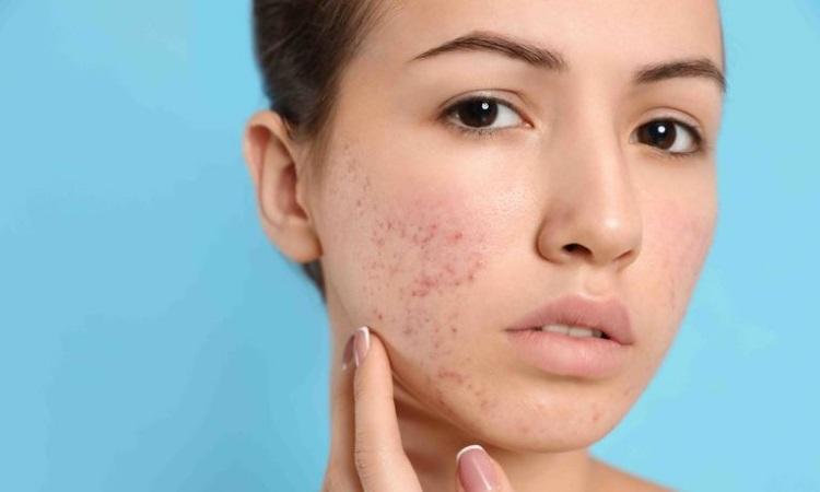 Mississauga Acne Treatment